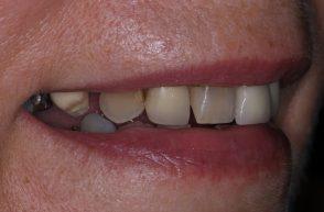 Before - Stoke Bishop Dental Centre