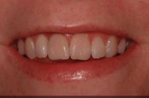 After - Stoke Bishop Dental Centre